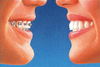 Invisalign-alternative to braces