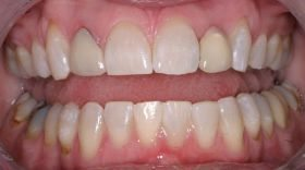 Close-up of original dental work - before