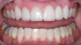 Close-up of cosmetic dentistry re-done - after