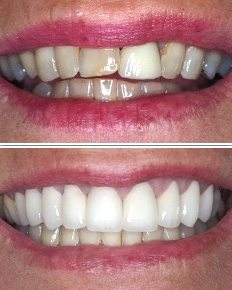 zirconia porcelain crowns smile before and after