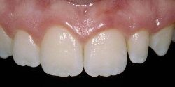 Before - Incisor replacement