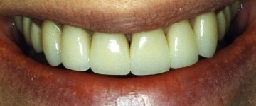 cosmetic dentist example 1