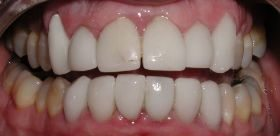 Before - Shows poor cosmetic dentistry work
