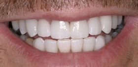 After - Beautiful cosmetic dentistry