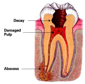 Diagram of a root canal abscess