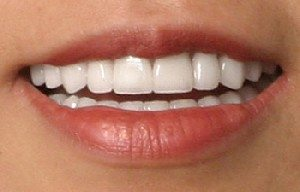 The tetracycline stains on Cinta's teeth have been masked with beautiful porcelain veneers.