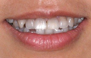 Cinta's teeth with tetracycline stains.