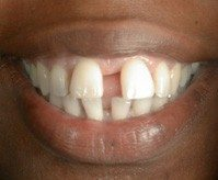 large tooth gap before bonding