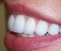 After - Porcelain veneers re-shaped front teeth