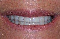 After - Smile makeover with porcelain veneers