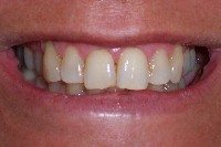 Before - Gaps in smile