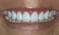 After - Beautiful porcelain veneers