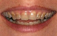 Before - crooked and discolored teeth