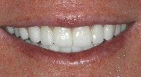 After - Porcelain veneers