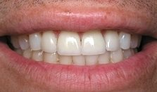 After - da Vinci veneers
