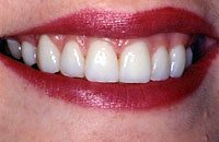 After - Veneers to improve appearance