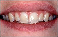 Before - Gap in discolored front teeth