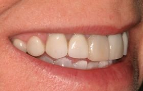 An attempt by a family dentist to mask tetracycline stains.