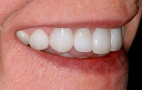 Tetracycline stains effectively masked by an expert cosmetic dentist.