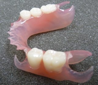 Valplast removable partial denture