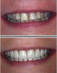 Before and after of stained, uneven teeth