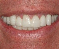 Close-up of crooked teeth fixed with porcelain veneers