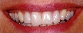 Crooked teeth fixed with veneers - after