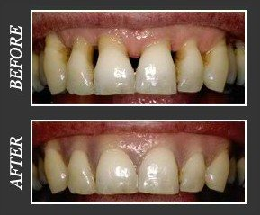 gingival epithesis After implantations for the correction of aesthetic and phonetic insuficiencies gingivamoll flexible gingival epithesis, elastic, heat curing and clinically tested silicone material.