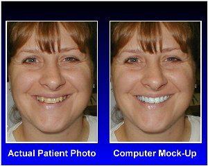 Side by side comparison of smile makeover