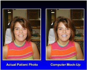 Before and after examples using computer imaging.