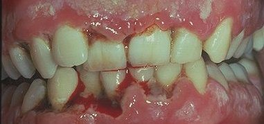 trench mouth or acute necrotizing ulcerative gingivitis