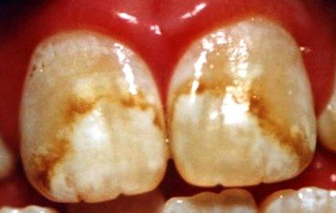 Example of fluorosis staining on front teeth