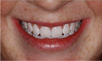 After - Laser tooth whitening