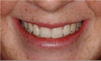 Before - Laser tooth whitening