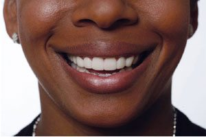 Another example of snap-on smile - after