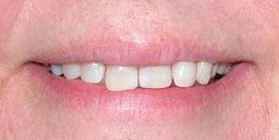 gaps closed with teeth effects - after