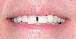 Example of teeth gaps corrected with teeth effects