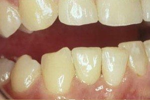After - Photo of completed dental implant.