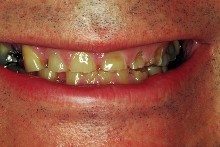 Before - Severely worn and missing teeth