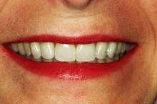 After - Dental bridges and porcelain veneers