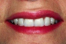 After - Porcelain veneers by Dr. LeBlanc.