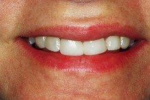 Before - Chipped composite fillings and crooked teeth.