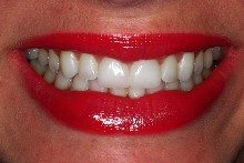 After - Teeth whitening and porcelain veneers.