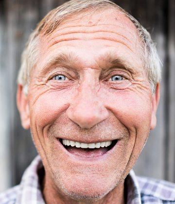 Older person smile design